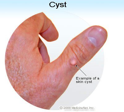 Picture of a skin cyst