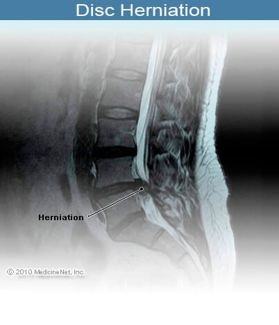 Picture of herniated disc pinching the nerves in the spinal cord