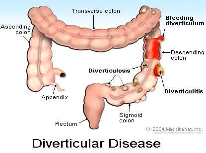Picture of Diverticular Disease