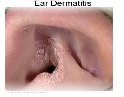 Photo of atopic dermatitis on the ear