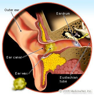 Ear Wax Illustration