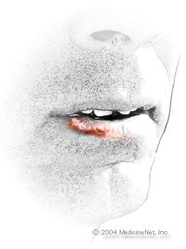 Fever blister Illustration - Febrile herpes