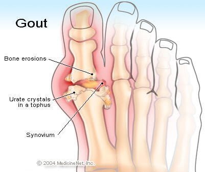 http://images.medicinenet.com/images/illustrations/gout.jpg
