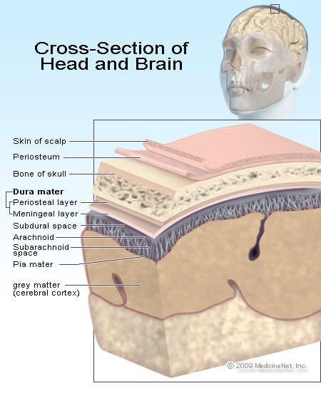 Picture of the brain and potentially brain injury areas
