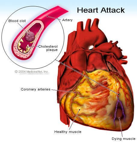 Picture of a heart attack (myocardial infarction).