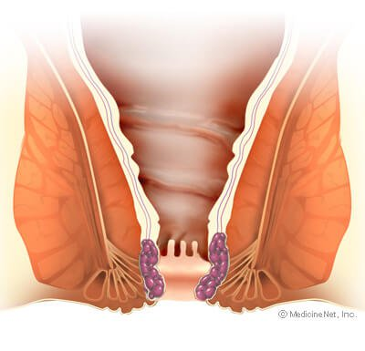 Picture of Internal Hemorrhoids in Anal Canal