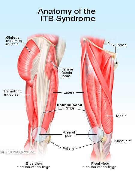 Picture of the iliotibial band