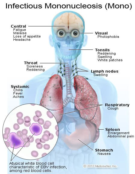 Infectious Mononucleosis Diagnosis