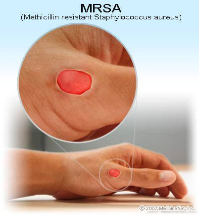 Picture of MRSA (methicillin-resistant Staphylococcus aureus) infection