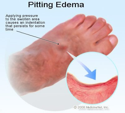 Picture of Pitting Edema