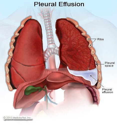 Picture of pleural effusion in the pleural space