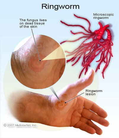 Pictures of Ringworm (Tinea)
