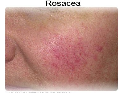 how rosacea look like