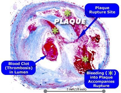 Picture of Rupture of Plaque in Coronary Artery