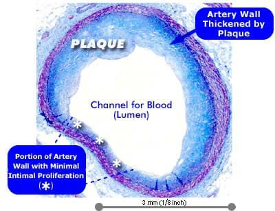 Picture of Stable Atherosclerotic Tissue