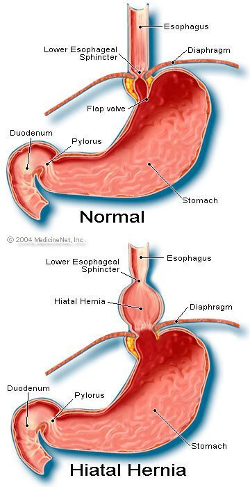 hiatal hernia symptoms, surgery, diet, pain & treatment, Cephalic vein