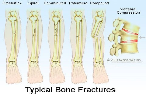 Typical Bone Fractures illustration - Spiral fracture