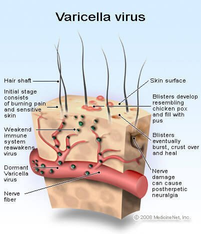 Picture: The Varicella zoster virus can cause shingles and postherpetic neuralgia.