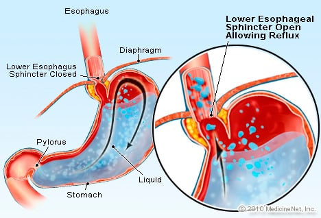 Gastroesophageal Reflux (GERD) Illustration