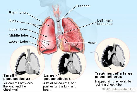 Pneumothorax Illustration