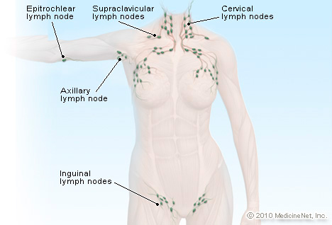 lymph nodes picture image on medicinenet, Human Body