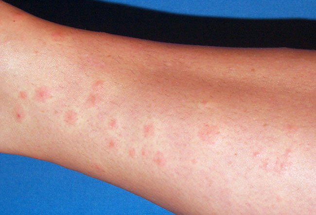Picture of Dermatitis From Common Carpet Beetle    