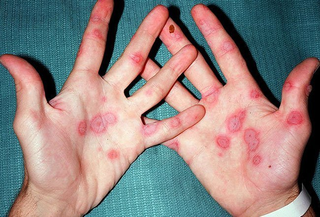 This Lupus Lifeerythema Multiforme This Lupus Life