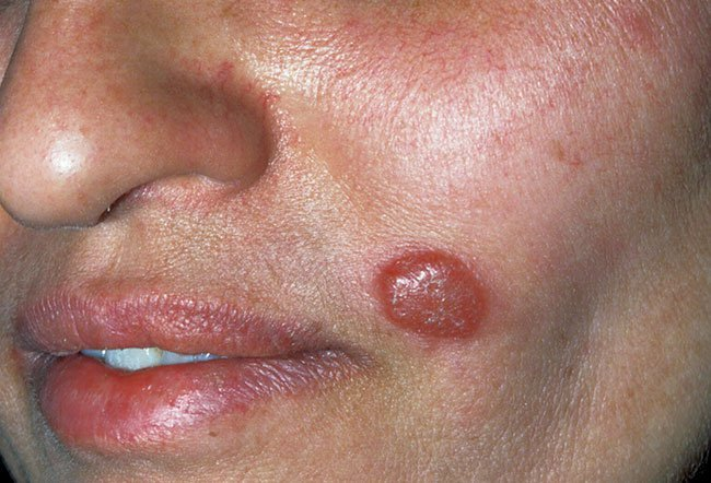 Picture of Leishmaniasis    
