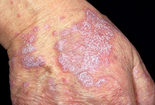 Oral lichen planus Overview - Mayo Clinic