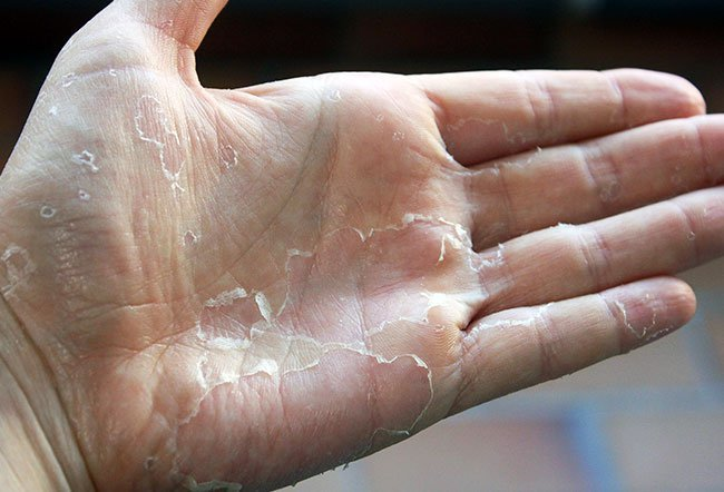 Picture of Scarlet Fever