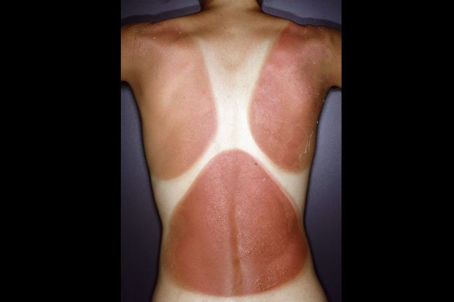 Picture of Acute Sunburn   