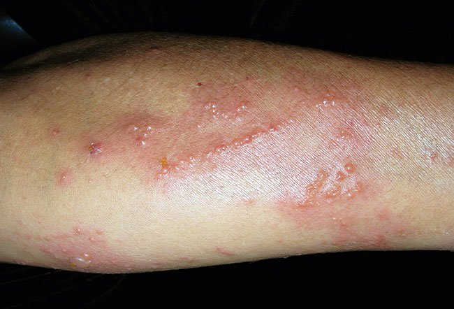 Picture of Allergic Contact Dermatitis