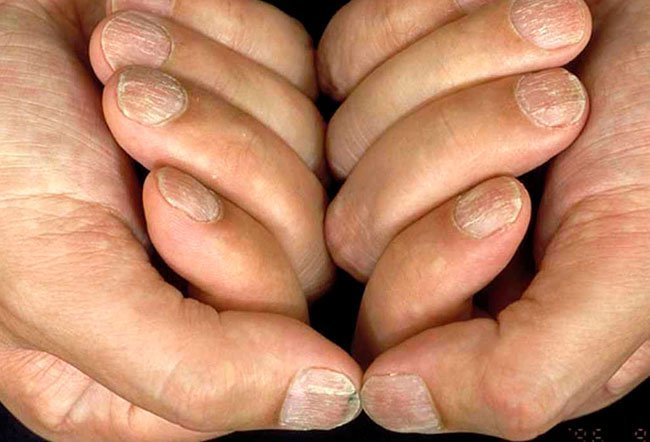 Picture of Alopecia Areata (Nails)