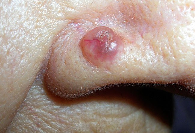 Picture of Basal Cell Carcinoma (Nose)