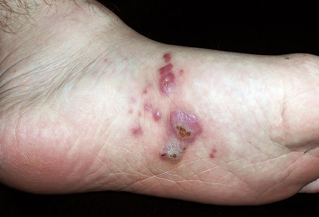 Picture of Kaposi's Sarcoma Ecchymotic