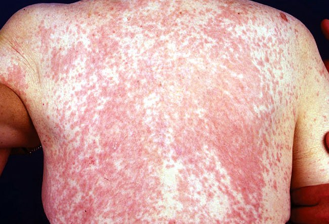 Picture of Dermatitis Medicamentosa (Back)
