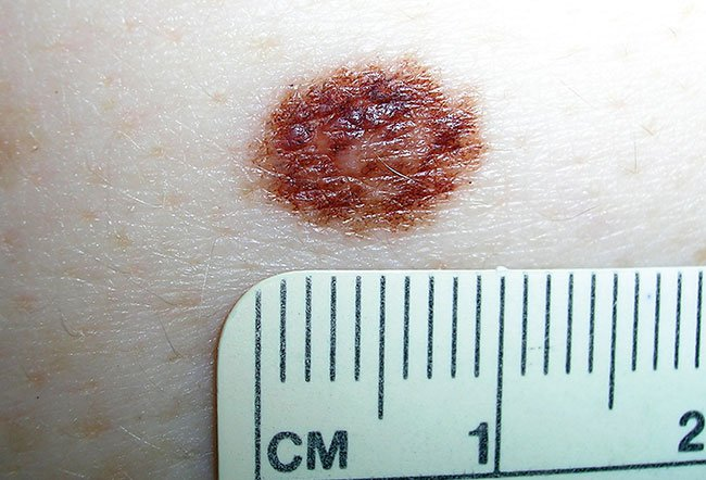 Picture of Dysplastic Nevus