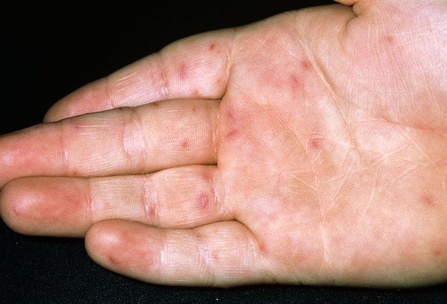 Picture of Hand-Foot-and-Mouth Disease on Hand (2 of 2)
