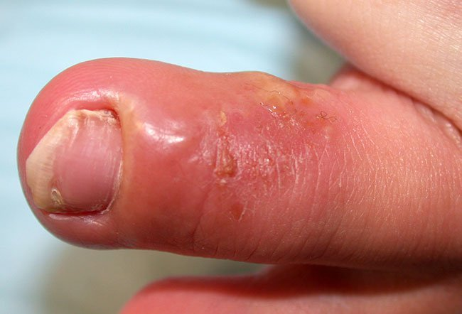Herpetic Whitlow is a skin condition on the fingers caused by herpes simplex virus 2