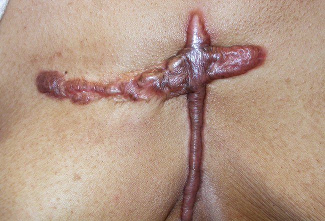 Picture of Keloid