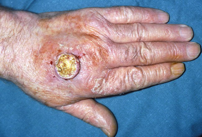Picture of Keratoacanthoma (2 of 2)   