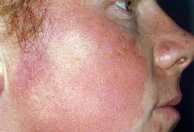 Picture of Keratosis Pilaris Atrophicans.