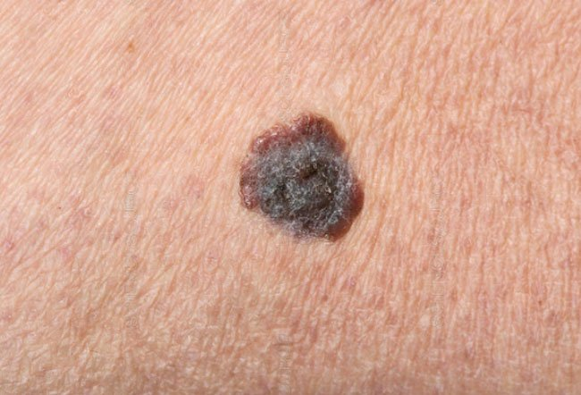 Picture of Malignant Melanoma