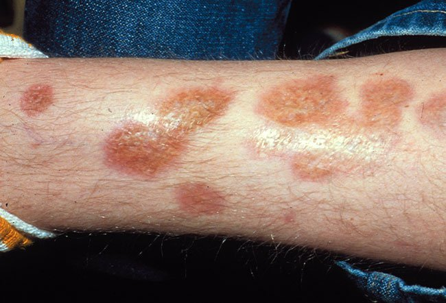 Picture of Necrobiosis Lipoidica Diabeticorum