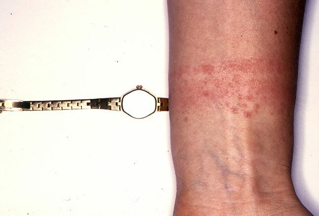 Picture of Nickel Contact Dermatitis from Necklace