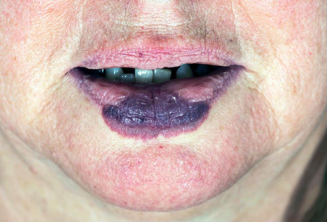 Picture of Port-Wine Stain (Lip).