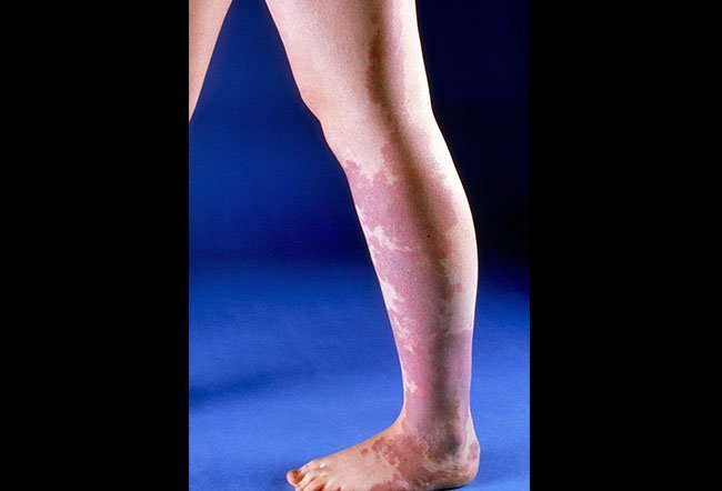 Picture of Port-Wine Stain (Neck)