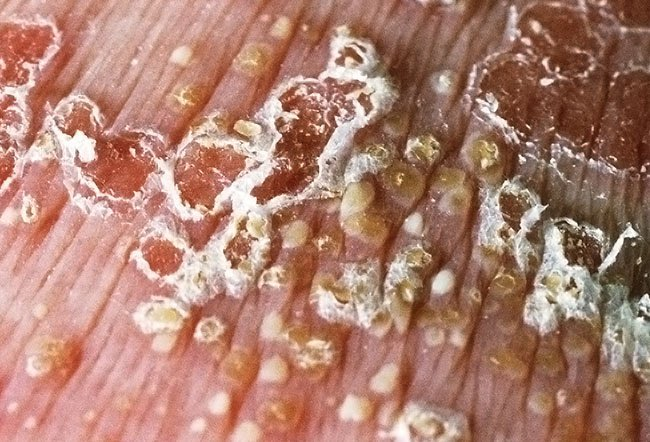 Picture of Psoriasis Vulgaris Palms