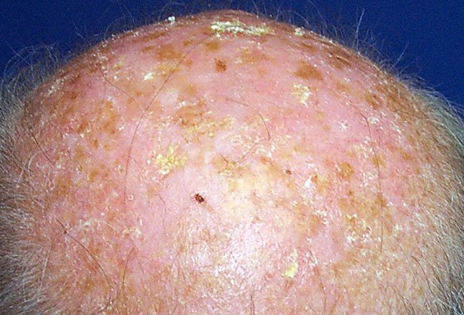 Picture of Solar Keratosis
