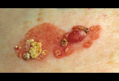Picture of Squamous Cell Carcinoma (2 of 2)